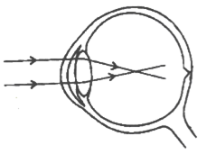 Given below is a diagram depicting a defect of the human eye study i name the defect shown in the diagram ii what are the two possible reasons that cause this defect iii name the type of lens used to correct this ccuart Images