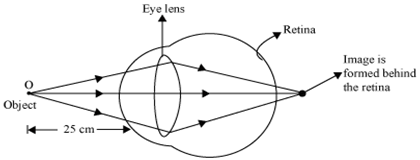 A a person cannot read newspaper placed nearer than 50 cm from his the person is unable to see the nearby objects distinctly and can only see far by objects with a clear vision the diagram below illustrates this defect ccuart Choice Image