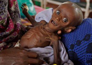 Chhattisgarh-eight-million-children-malnourished